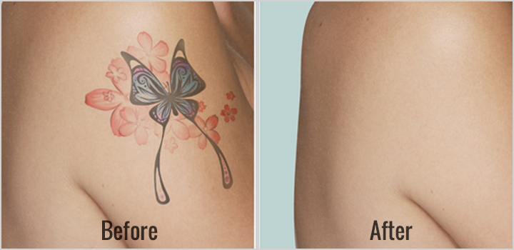 Can You Get a Tattoo After Laser Tattoo Removal?