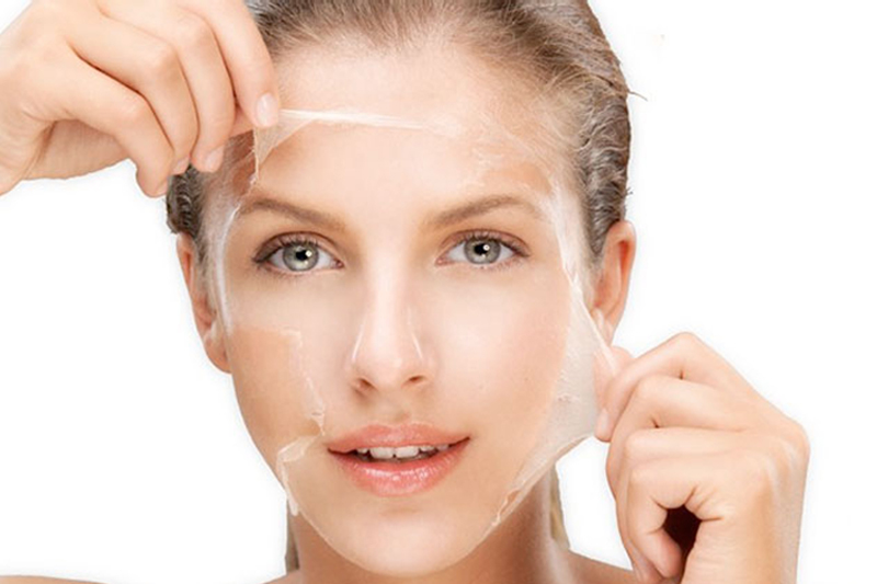 Is chemical peel good for skin?