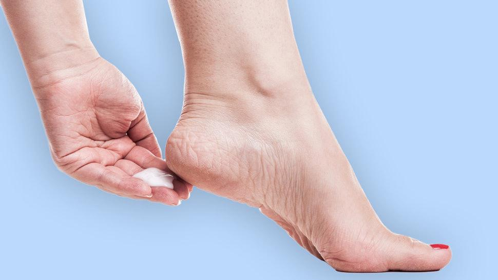 How to Cope with Dry Skin and Cracks on Your Feet