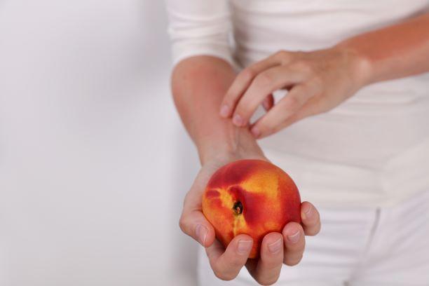 The Link Between Eczema and Food Allergies