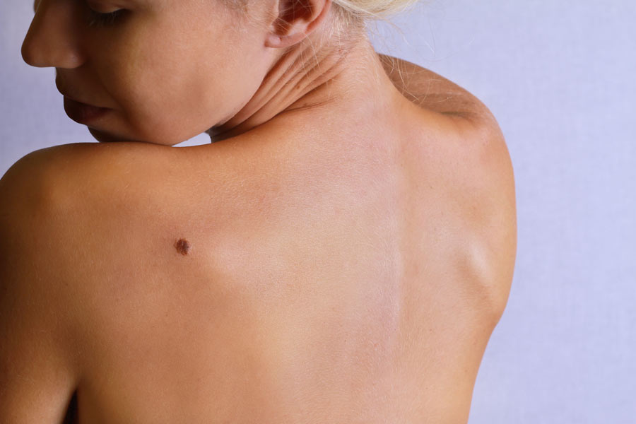 Do You Know Why Your Mole Is Suddenly Itchy?