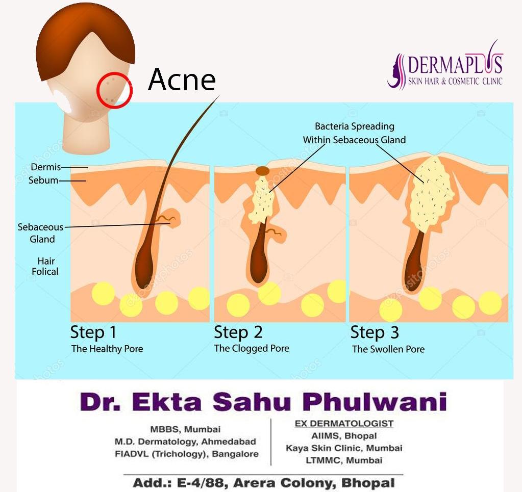 Why Do I Get Acne?