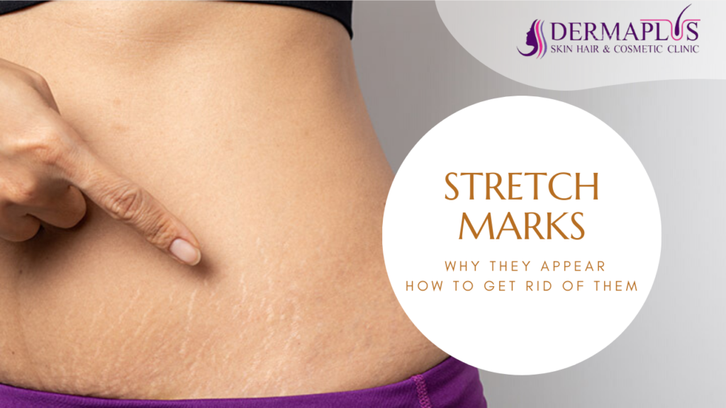 STRETCH MARKS: WHY THEY APPEAR AND HOW TO GET RID OF THEM