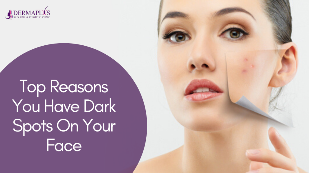 Top Reasons You Have Dark Spots On Your Face